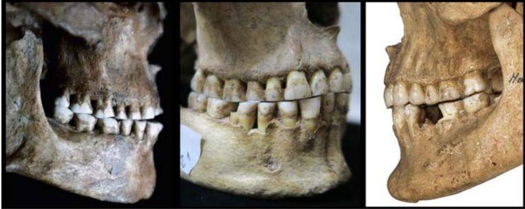 Een vroege boer met zijn lichte overbeet (rechts) en twee jager-verzamelaars uit de steentijd met hun afgesleten tanden en rechte beet (links, midden). Beeld Science, D. Blasi