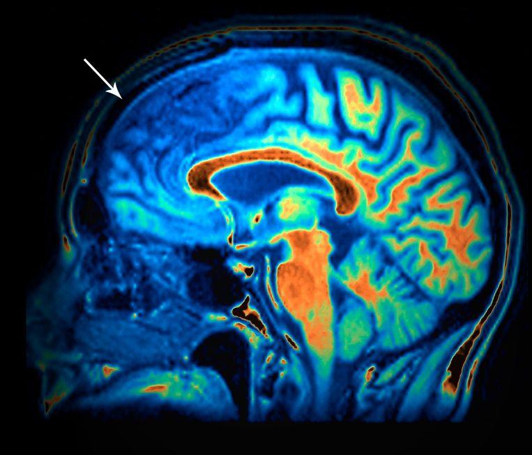 Een MRI-scan van een 50-jarige met frontaalkwabdementie. Bij de pijl is te zien hoe de frontale kwab gekrompen is ten opzichte van het gezonde brein op de andere MRI-scan. Symptomen die vaak voorkomen bij frontaalkwabdementie: veranderingen in persoonlijkheid, zoals verlies van emotionele remmingen en empathisch vermogen. Beeld Science Photo Librabry
