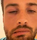 Dave Roelvink had last van zijn gezicht