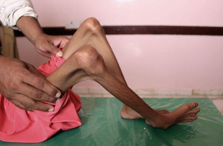 Een ondervoed kind uit Jemen krijgt verzorging. Beeld AFP