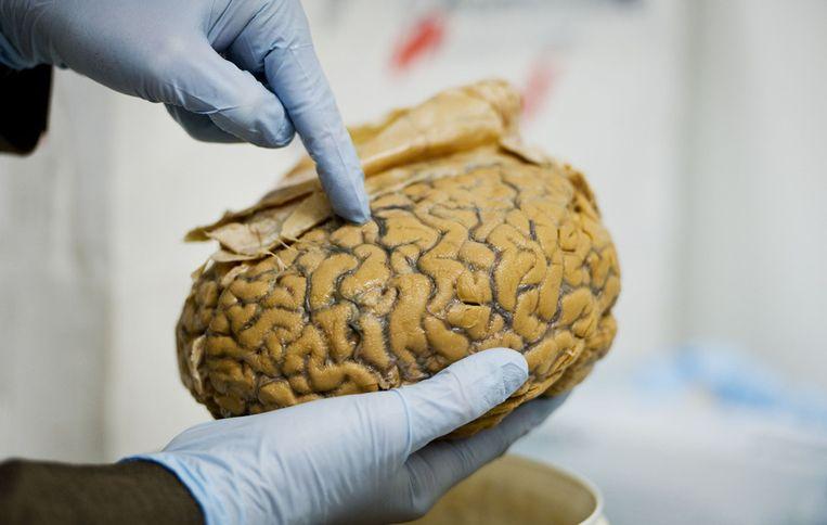 Hersenen worden bewaard in de Nederlandse Hersenbank in Amsterdam.  Beeld ANP