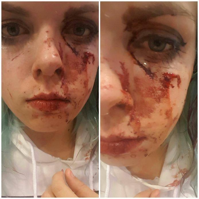 Zo zag het slachtoffer eruit nadat zij glas in haar gezicht kreeg. Foto: Facebook