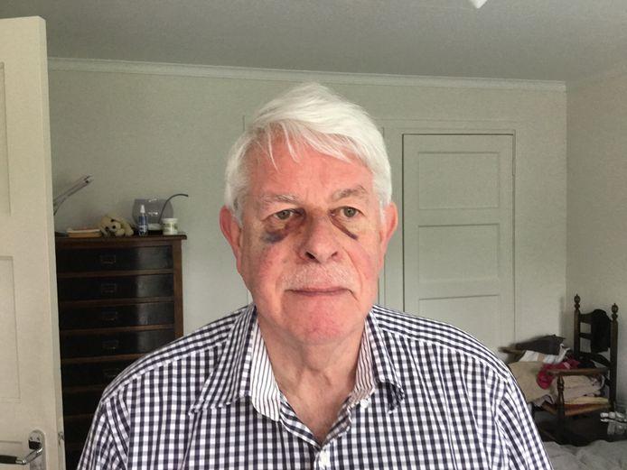 Het toegetakelde gezicht van Henk de Bruijn in de week na de mishandeling.