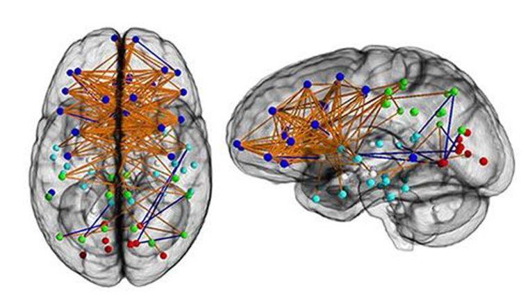 Hersenonderzoek Bevestigt Vooroordelen Over Mannen En