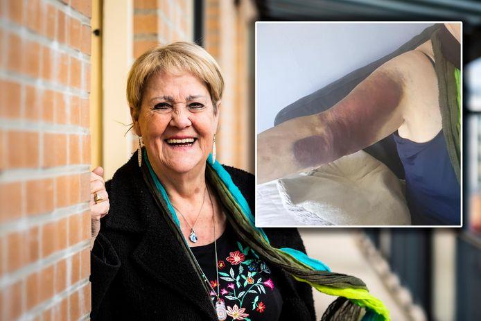 Raadslid Wil Verschuur van 'Beter Alphen' kwam lelijk ten val in het gemeentehuis en brak haar arm.