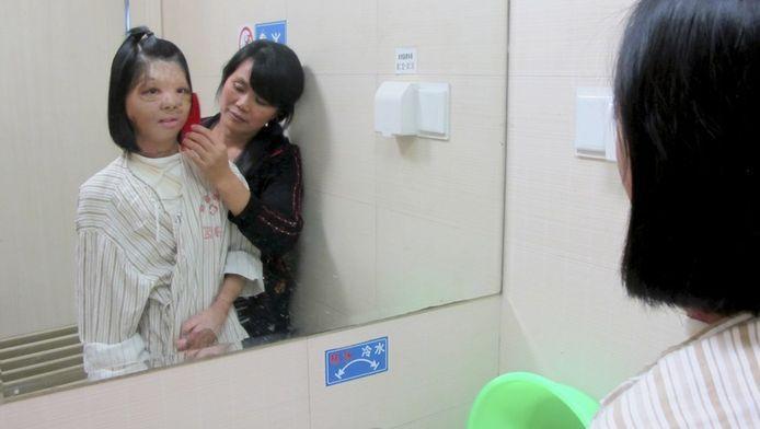De 17-jarige Xu Jianmei kan eindelijk weer lachen na de transplantatie.