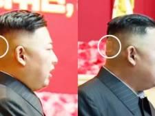 Kim Jong-un vu avec un pansement sur la tête, les rumeurs sur son état de santé reprennent de plus belle