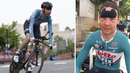 """Belg van Lotto-Soudal onherkenbaar na wespensteek net voor Giro-proloog: """"Kreeg mijn ogen niet open"""""""