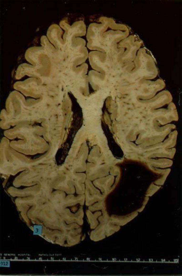 Hersenscan. De donkere vlek is een lekkage van bloed. Beeld