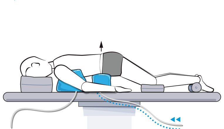 Dankzij de kussens ligt de patiënt in de ideale positie bij rugoperaties. Beeld RV