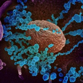 covid-19-blijkt-hard-toe-te-slaan-in-het-brein-ontdekken-nederlandse-onderzoekers