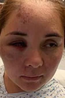 Une mère agressée par le harceleur de son fils après s'en être plaint