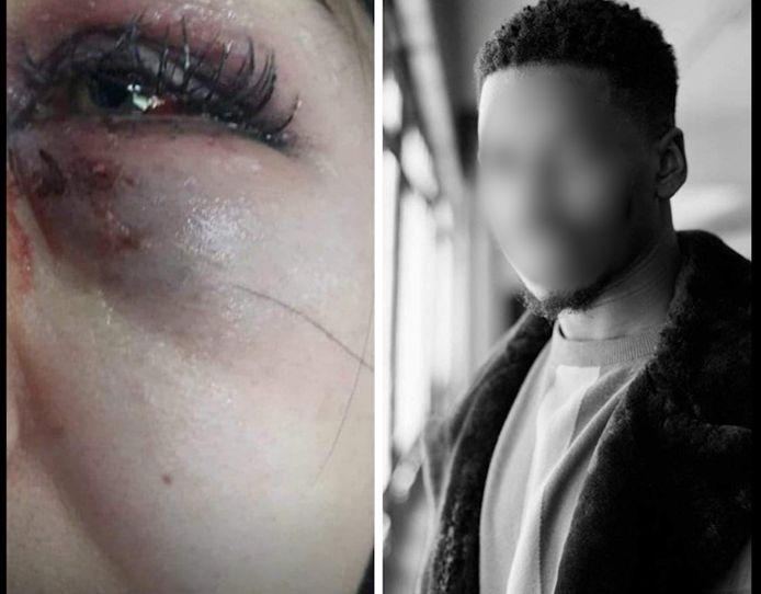 Le violeur de Charleroi aurait frappé à plusieurs reprises le visage d'une des victimes