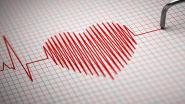 Onderzoekers ontwikkelen nieuwe screeningstest die kans op plotse hartfalen beter inschat