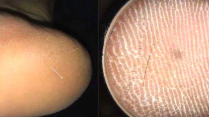 Mysterieuze stekende pijn in voet van patiënt veroorzaakt door zeer zeldzame haarsplinter
