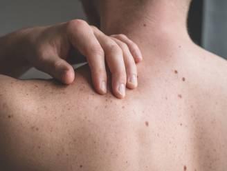 """Goedele Liekens waarschuwt voor gevaren van melanomen: """"Smeer en controleer"""""""