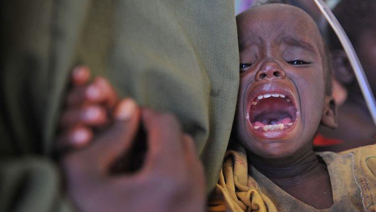 Een ondervoed kind in Somalië. Beeld epa