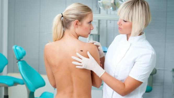 Wat je moet weten over melanoom