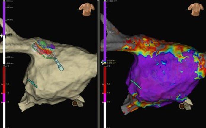 Cette nouvelle technologie de cartographie des arythmies a facilité l'ablation d'une fibrillation auriculaire.