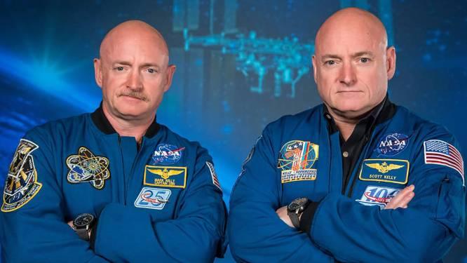 Identieke tweelingen helemaal niet zo 'identiek' als we denken