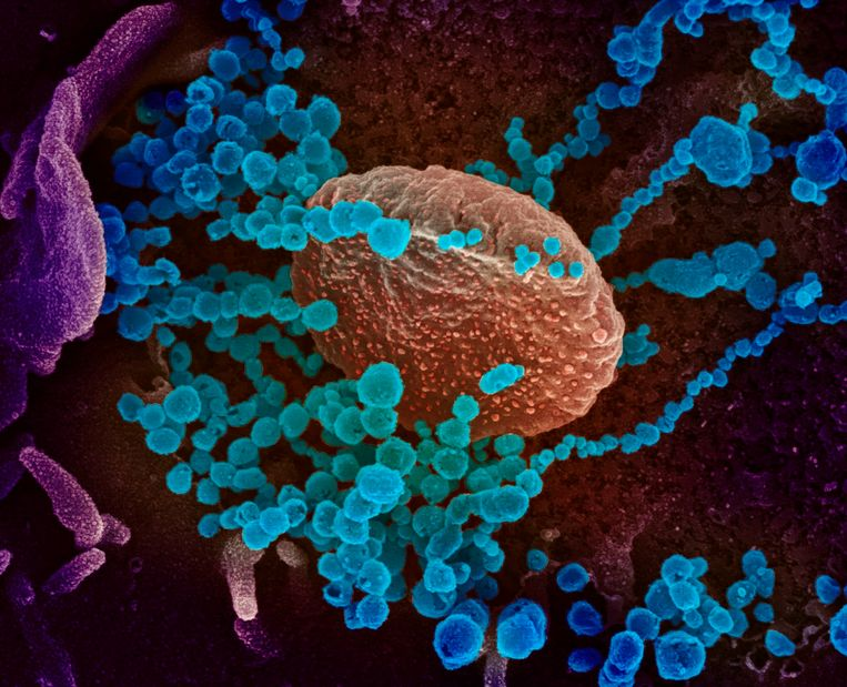 null Beeld AFP photo /National Institutes of Health/niad-rml/handout