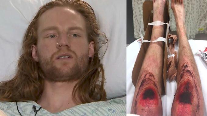 Loper breekt been en kruipt acht uur lang op zoek naar hulp