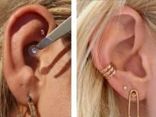 """Effet de mode ou méthode d'acupuncture efficace, qu'est-ce que le """"ear seeding""""?"""
