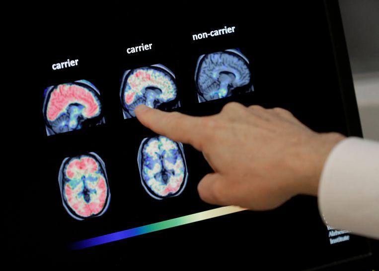 Een hersenscan bij het Banner Alzheimer Instituut in de Amerikaanse staat Phoenix. Beeld AP