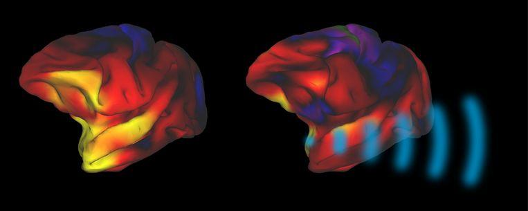 Links de hersenen voor geluidstimulatie, en rechts de hersenen na geluidstimulatie. Het stimuleren van de amygdala, het hersengebied linksonder dat onder meer de angst regelt, vermindert de sterkte van verbindingen met de rest van het brein. De hoop is dat dit klachten als depressie kan verminderen. Beeld Lennart Verhagen