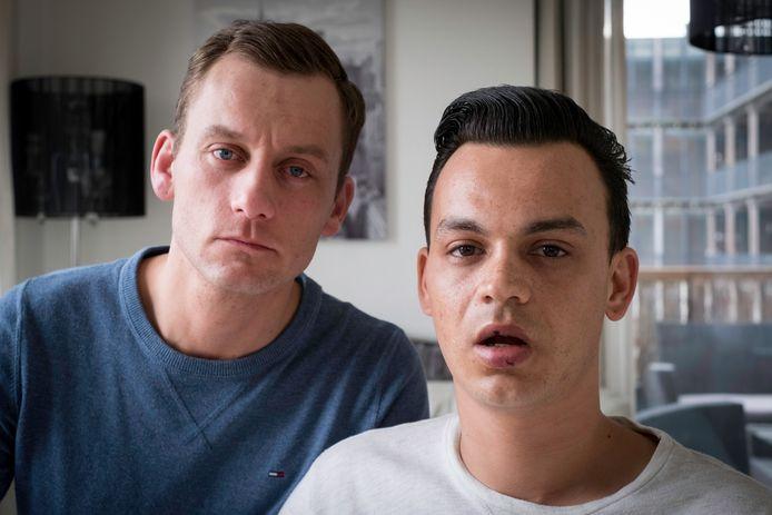 Jasper en Ronnie (rechts) werden aangevallen met een betonschaar na een avondje stappen in Arnhem.