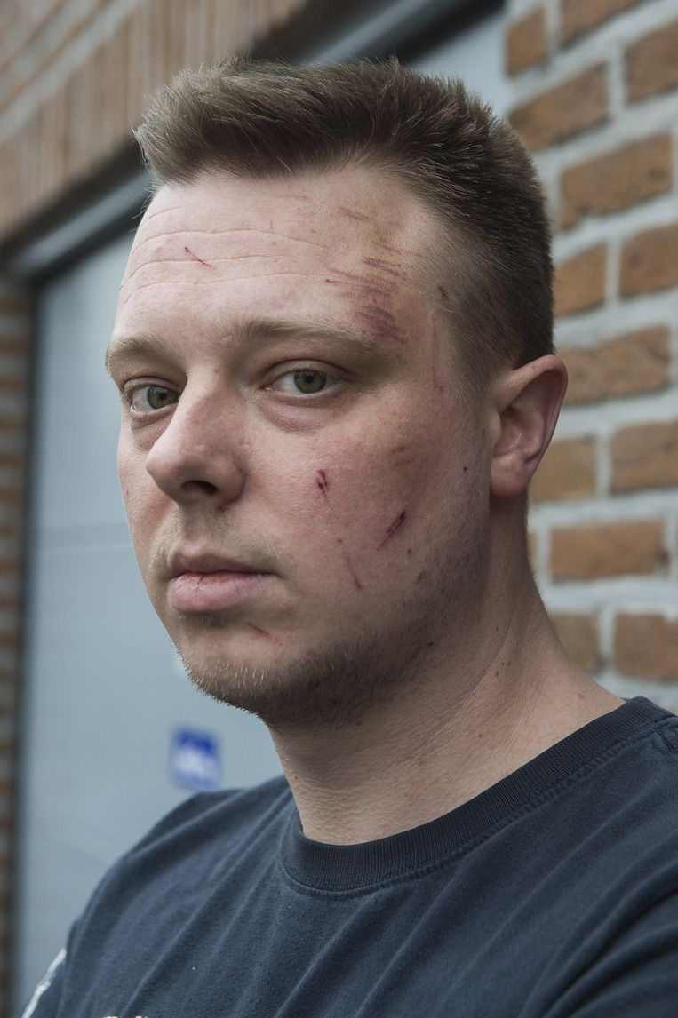 """Gianni Peeters kreeg een klap tegen zijn hoofd en viel flauw. Artsen hebben een zware hersenschudding vastgesteld. """"Ik heb geluk gehad, zeiden ze."""""""