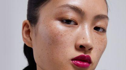 """""""Een belediging aan China"""": model met sproetjes veroorzaakt commotie"""