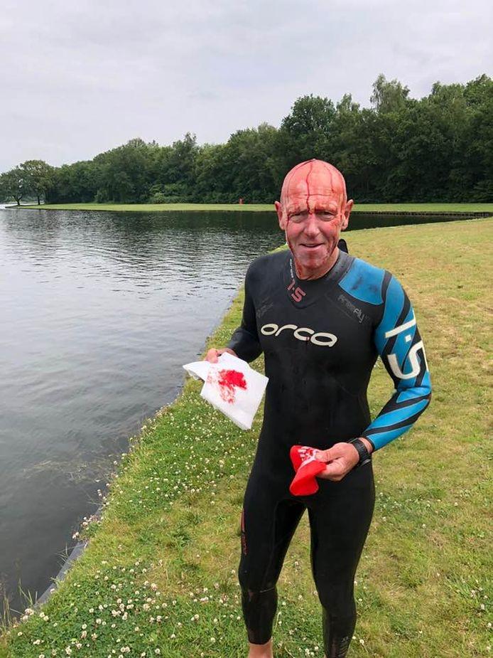 Triatleet Gerrit Jan Soetman (61) werd donderdagmiddag gegrepen door een zwaan in Het Rutbeek, de zwemplas bij Enschede. Hij kwam er met een hoofdwond nog goed vanaf.