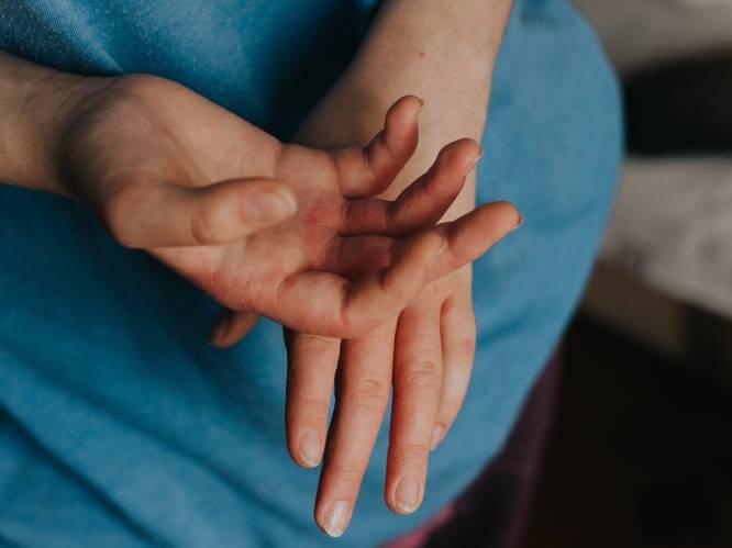 """Last van droge, rode en jeukerige huid? Deze 3 types eczeem kunnen de boosdoener zijn. """"Een kind laat je best zo snel mogelijk behandelen"""""""
