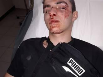 Extra patrouilles aan station Deinze na afranseling Jarno (16) en zijn vrienden, politie heeft verdachten op het oog