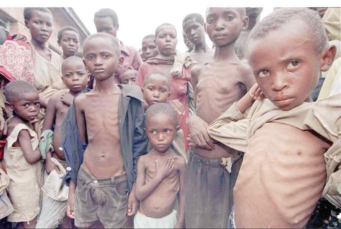 Ondervoede kinderen in een ontwikkelingsland.