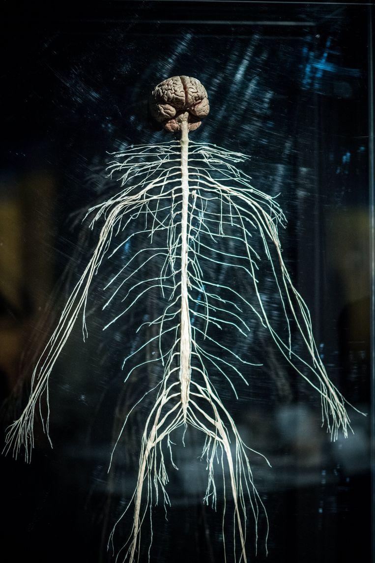 Een impressie van de menselijke zenuwen bij de tentoonstelling 'Body Worlds & The Cycle of Life'. Bij ratten lukte het wetenschappers om kapotte zenuwen te laten herstellen met gentherapie. De stap naar menselijke toepassingen is nog groot, onder meer omdat de zenuwuitlopers van mensen een stuk langer zijn dan die van ratten.  Beeld EPA