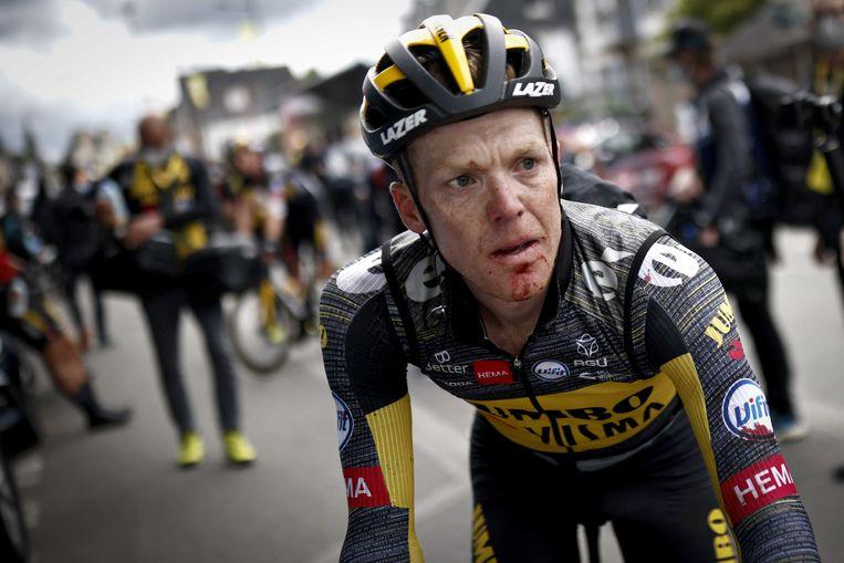 Steven Kruijswijk na zijn val in de derde etappe van de Tour de France, 28 juni. Beeld ANP