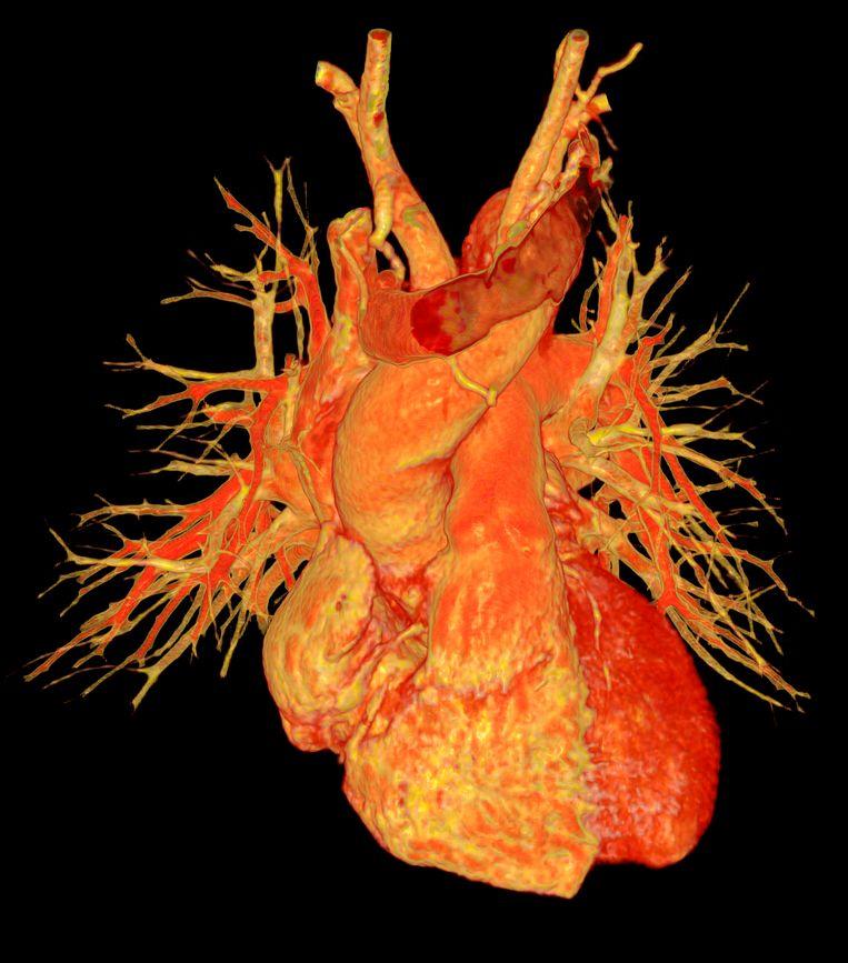 Een 3D-angiogram van een mensenhart. De CT-scan bevat delen van de bloedvaten (links en rechts) en delen van de grootste aderen. Beeld Science Photo Library