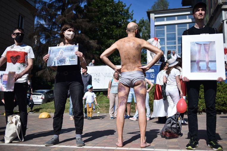 Demonstranten lieten vorige zomer hun verwondingen en die van anderen op straat zien. In de protesten na de verkiezingen in augustus trad de Belarussische politie loeihard op. Beeld AFP