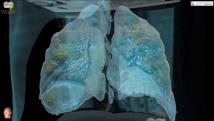 Vues 3D de poumons atteints par le coronavirus.