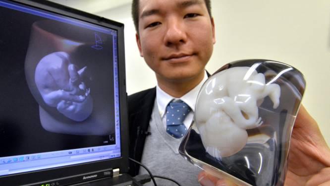 Nieuw: 3D-model van je foetus voor 'slechts' 940 euro
