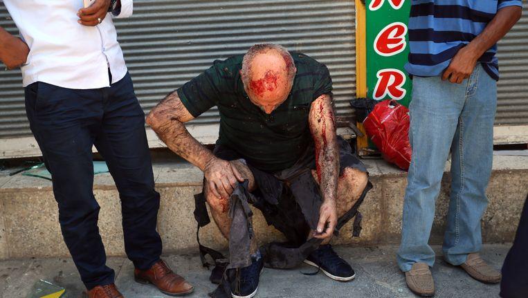 Een man die gewond is geraakt bij de aanslag in Suruç. Beeld AP