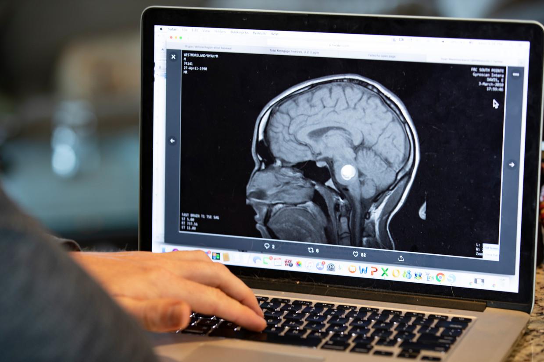 De robotjes kunnen worden ingezet om tumorcellen in de hersenen te bestrijden.