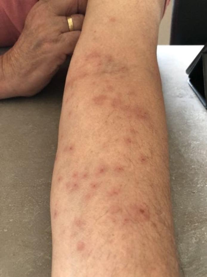 De arm van Harm Touwslager nadat hij in contact kwam met de haartjes van de eikenprocessierups.