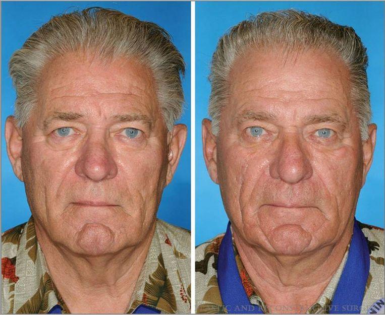 De man rechts rookte veertien jaar langer dan zijn tweelingbroer. Beeld  rv