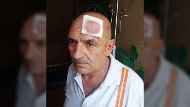 Tsemach na zijn arrestatie, met hoofdwond.