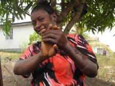 Nieuwe hand uit Nederlandse 3D-printer maakt Sierra Leoners dolgelukkig