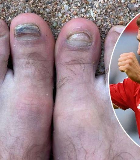 """Thomas Müller montre une photo effrayante de ses pieds : """"Je dois de toute urgence rendre visite à Nagelsmann"""""""
