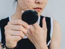 Cet organisme britannique souhaite que les personnes souffrant d'acné sévère bénéficient d'une aide psychologique
